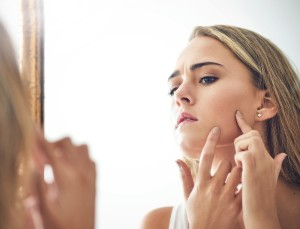 5 Things Your Acne Is Trying to Tell You About Your Health